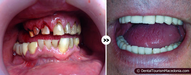 Total reconstruction, titanium ceramic crowns over natural teeth and 6 implants.