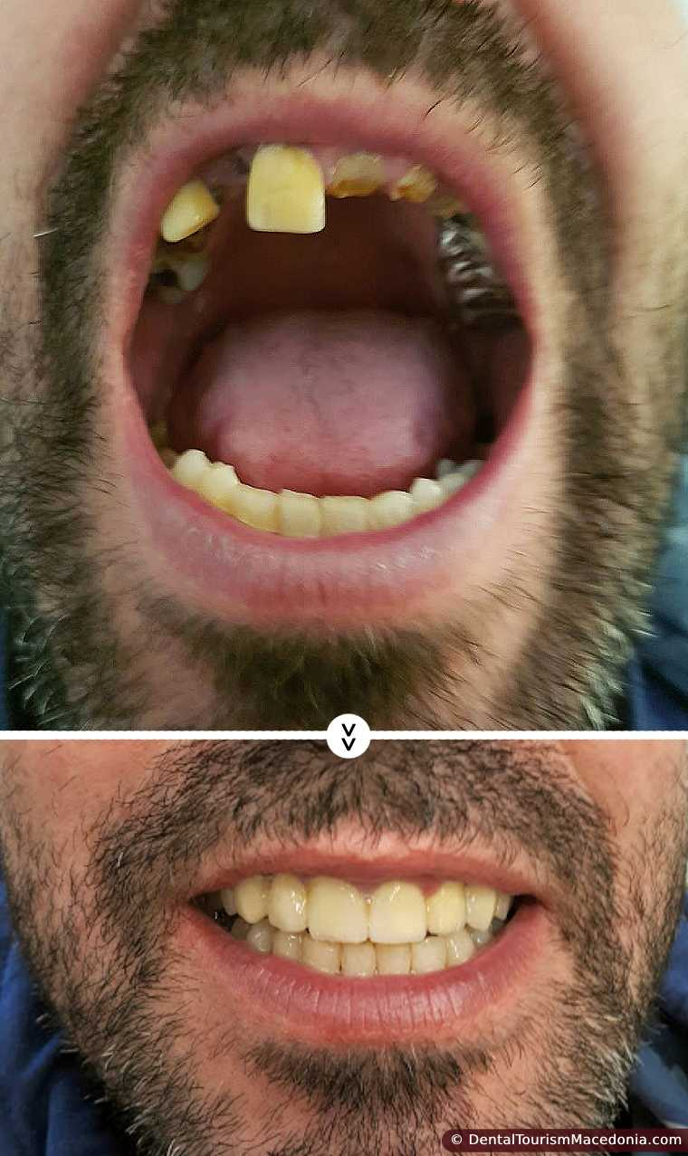 Total restoration upper jaw, combined work, Porcelain fused to metal crowns on implants and natural teeth.