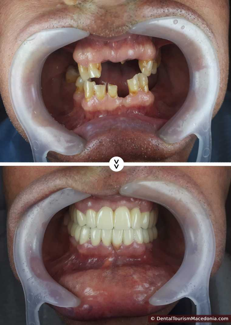 Full mouth rehabilitation with Zirconia ceramic CAD CAM crowns, combined work on implants and on natural teeth.