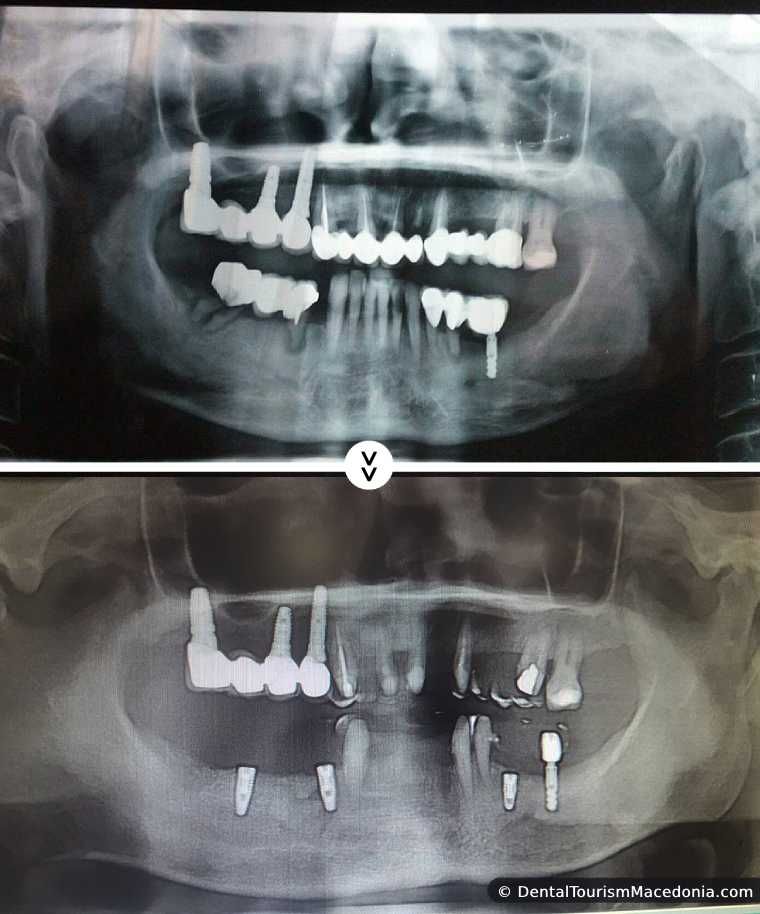 Full mouth rehabilitation with Titanium composite CAD CAM crowns, combined work on implants and on natural teeth.