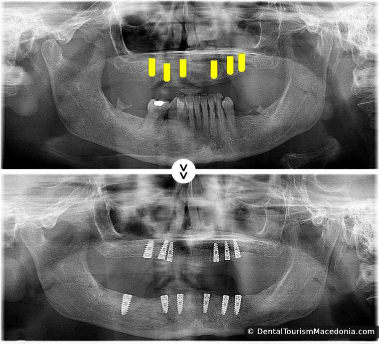 Full mouth rehabilitation with the ALL on 6 sistem and zirconia ceramic CAD CAM crowns without artificial gum.