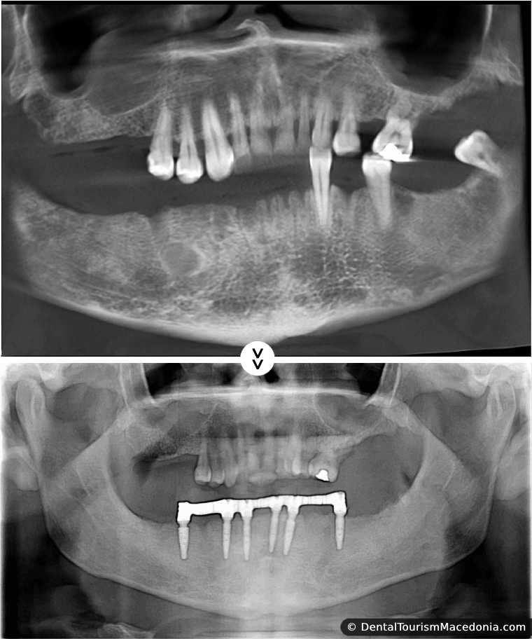 Lower jaw rehabilitation with the ALL on 6 sistem and screw retained Porcelain fused to metal crowns without artificial gum.