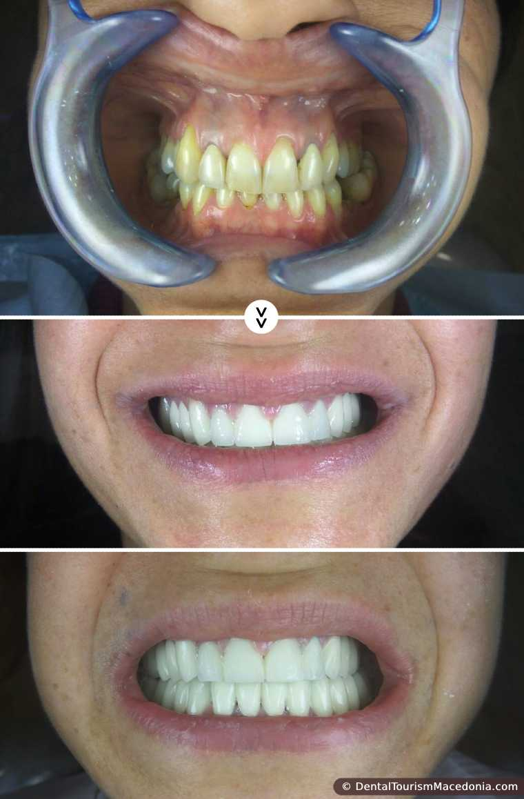 Full mouth rehabilitation with Zirconia ceramic CAD CAM crowns - Hollywood smile.