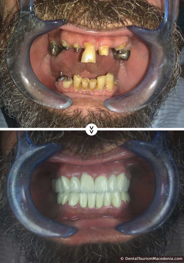 Full mouth rehabilitation with Porcelain fused to metal crowns.